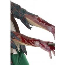 Zranění Otevřená zlomenina ruky